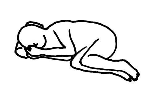 屈曲側臥位(くっきょくそくがい) のイラスト図