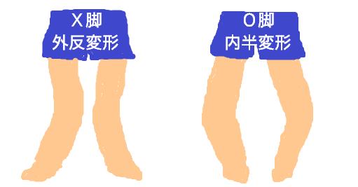 X脚(外反変形)とO脚(内反変形)の違い・イラスト・画像