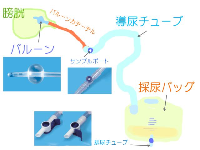 ウロバッグ・ハルンバッグ、バルーン、採尿バッグの図、無料イラスト