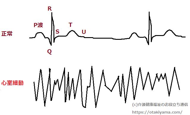 心室細動の心電図と正常心電図