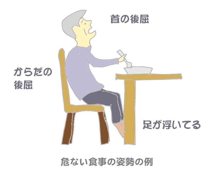 誤嚥しやすい食事の時の悪い座位姿勢