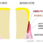 吐息のニオイ(口臭)の原因と対策方法、歯周病、介護現場での口腔ケア、舌苔対策