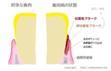 介護現場での口腔ケア 吐息のニオイ(口臭)の原因と対策方法