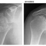 骨折の治癒過程と骨折部位による骨癒合期間の目安