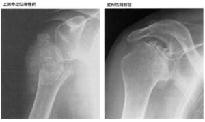 上腕骨骨折レントゲン