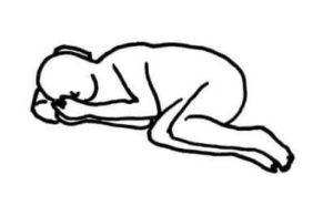 屈曲側臥位のイラスト図
