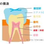 虫歯の原因 C1、C2、C3、C4の進行度と治療