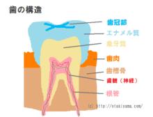 虫歯になる3つの原因 原因菌と口内環境を整える菌、糖質、歯の質