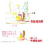 尿漏れ対策 9種類の尿失禁の原因と骨盤底筋群を鍛える方法