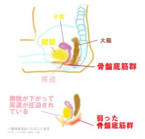 弱った骨盤底筋の図