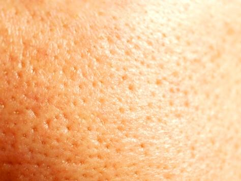 加齢臭は皮脂の酸化が原因 若者の汗臭さ対策は良い菌の活性