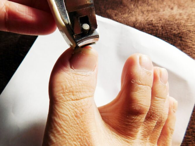 爪切りは介護職員も可能な医療的ケア