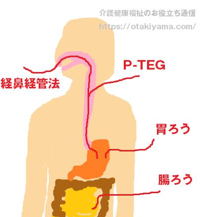 胃ろう(ペグ)・経鼻胃管栄養・中心静脈栄養の違いと注意点