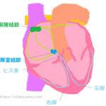 不整脈の治療法と2種類の徐脈(洞不全症候群、房室ブロック)