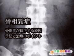 骨粗鬆症 骨密度が低下する原因を知り予防と治療を