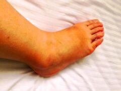蜂窩織炎とは 介護看護で足などの患部を挙上する理由