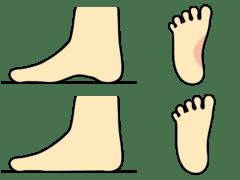 アーチがなくなり「扁平足」という健康な足の状態